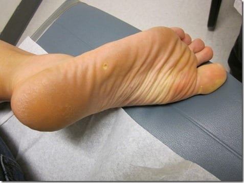 IMG 6558 600x800 thumb Foot Herpes