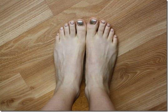 nasty running feet
