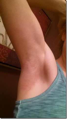 laser hair removal results and review (450x800)