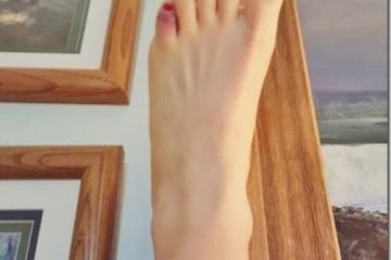 HELP! I BROKE My Toe