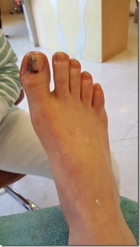 runner problems losing toenails (450x800)