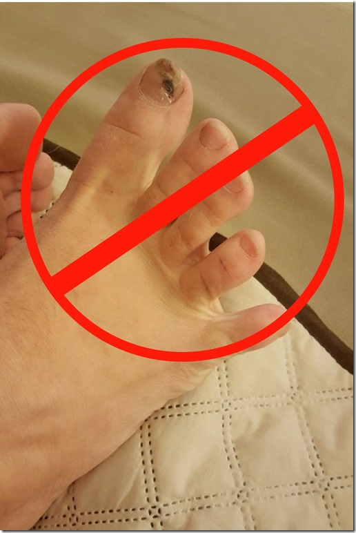 healthy toenails for runners blog