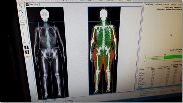 body spec dxa fat measurement scan 1 (800x450)