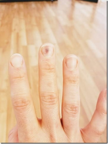 smashed finger (441x588)
