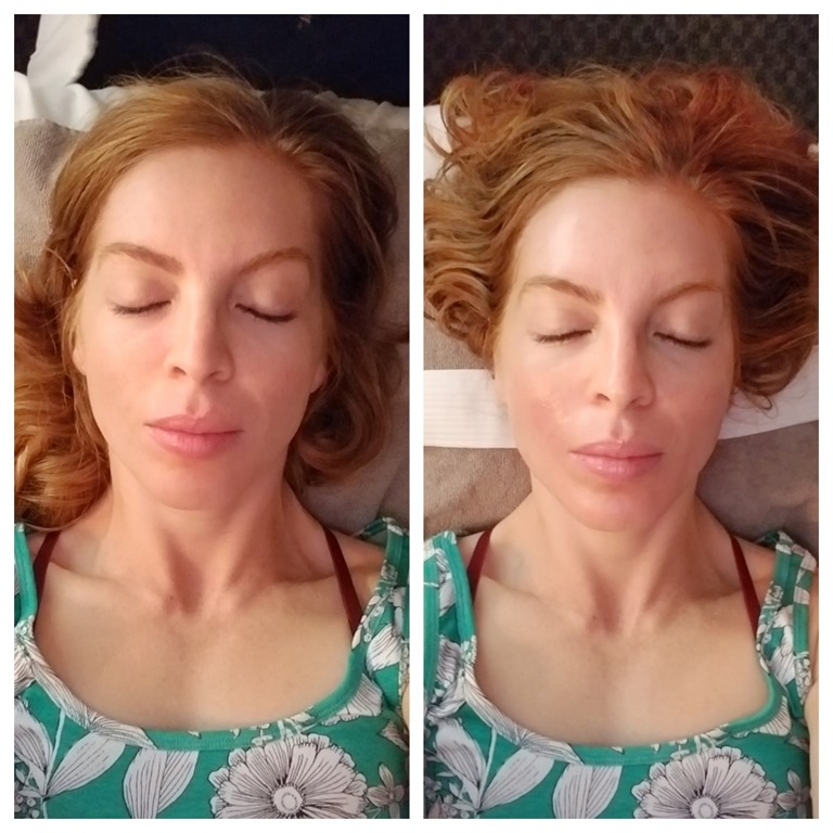 Before And After Merging Two Rooms Has Created A Super: Massage Envy Chemical Peel– Review And Before And After