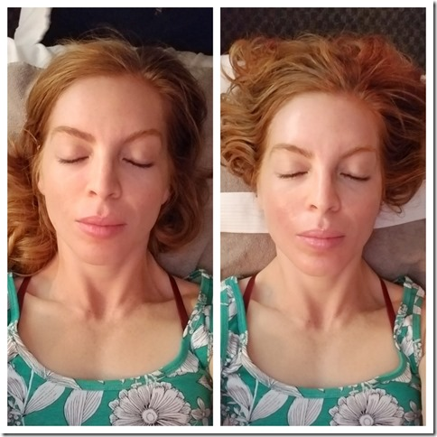 Massage Envy Chemical Peel before after